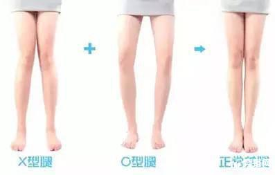 教你怎样纠正O型腿
